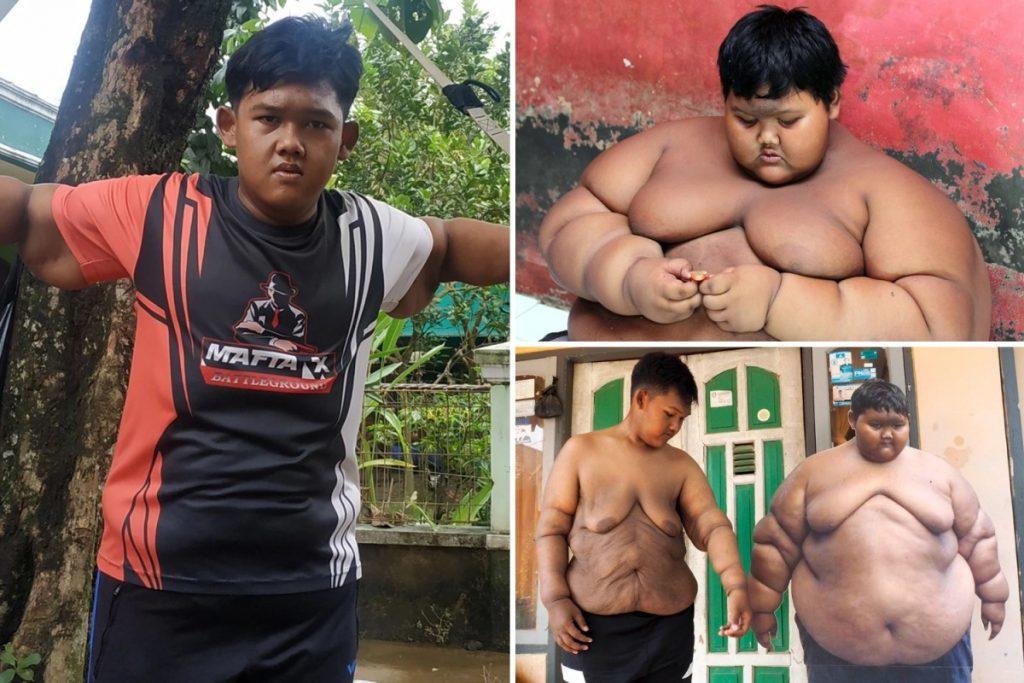 Najtučnejší chlapec sveta schudol 100kg